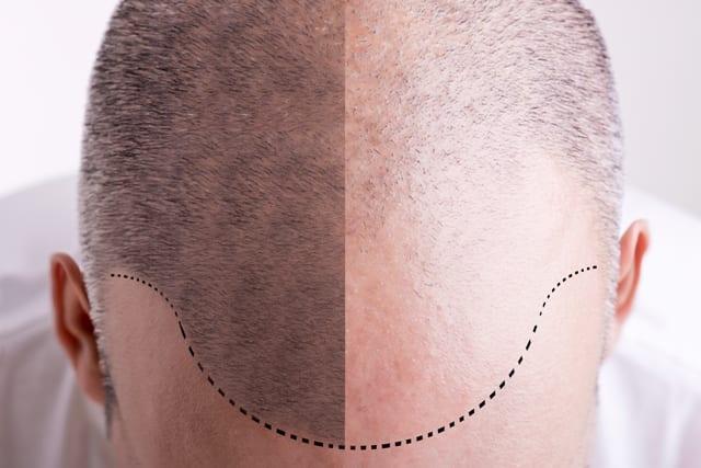 Tricopigmentación: Micropigmentación Capilar